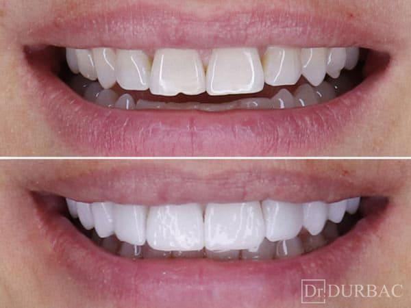 Pacient-132-fatete-dentare-inainte-si-Dupa