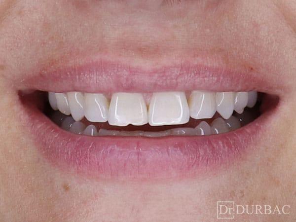 Pacient-132-fatete-dentare-inainte