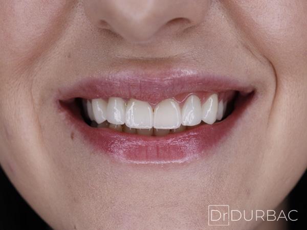 Pacient-151-fatete-dentare-Dupa-v2
