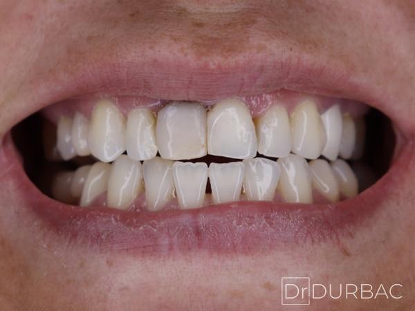 Pacient-151-fatete-dentare-inainte