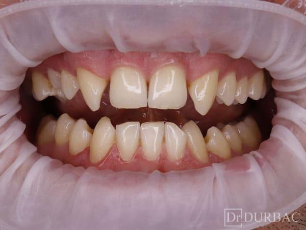 Pacient-164-fatete-dentare-inainte-v3