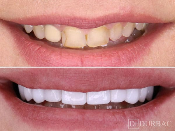 Pacient-28-fatete-dentare-inainte-si-Dupa