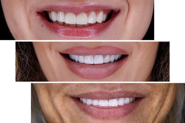 fatete-dentare-delta-clinic-dent