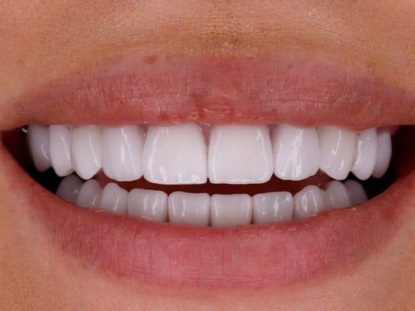 Fatete dentare Dr Durbac