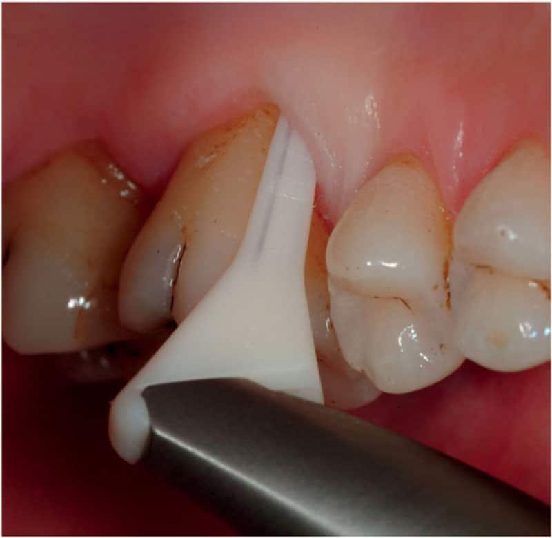 Airflow-parodontoza
