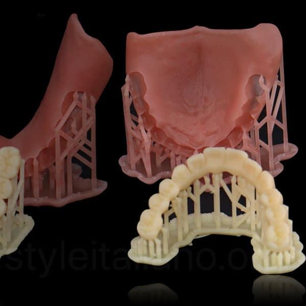 Proteza-dentara-printata-3d
