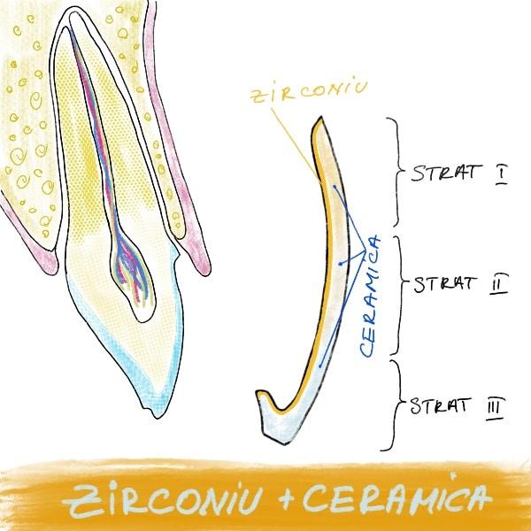 Fateta dentara Zirconiu