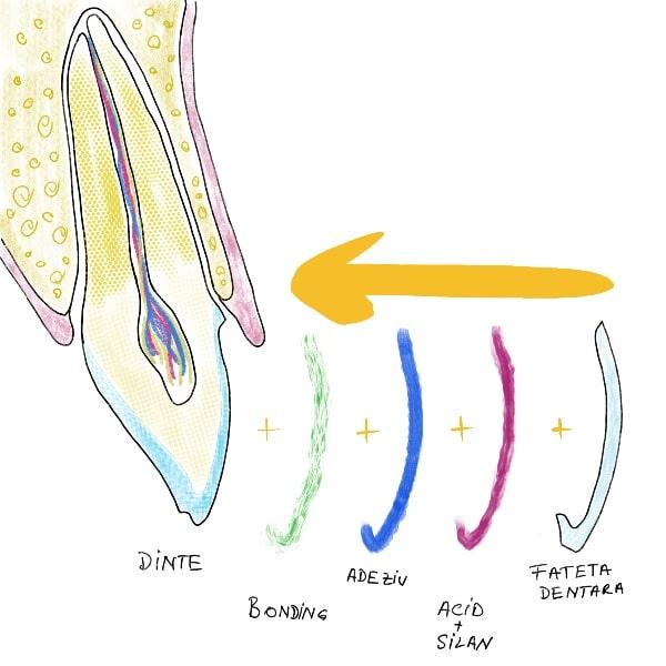 Cum se lipesc fatetele dentare